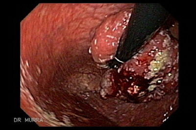 Giant Adenoma of the gastric fundus