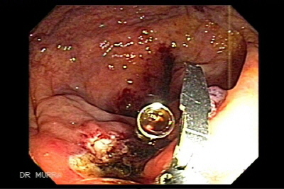 Endoscopic Polypectomy