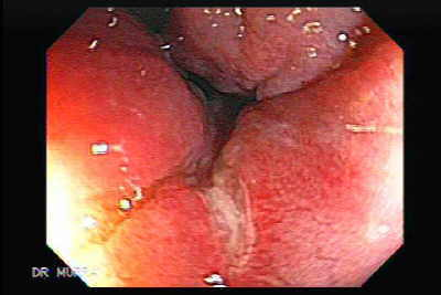 Endoscopic Image of Anal Fissure