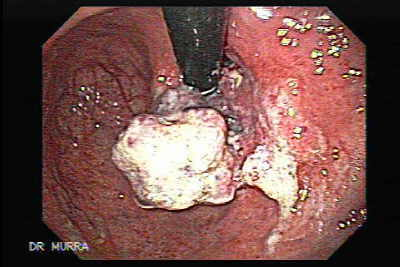 Endoscopic image of adenocarcinoma of the gastric fundus