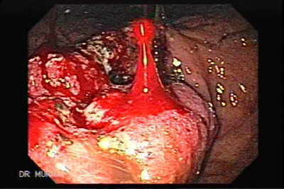 Endoscopy of Advanced Gastric Cancer