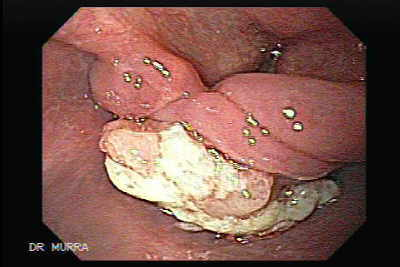 Endoscopy of Esophageal Squamous Cell Carcinoma of the the upper third of the Esophagus that invades the subglottic region.
