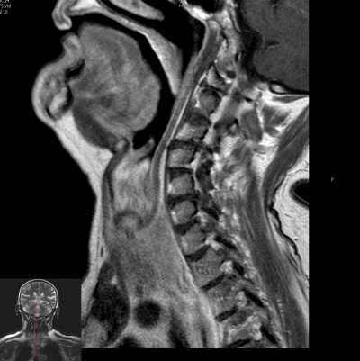 Magnetic Resonance of the Neck