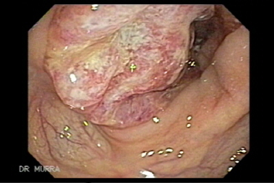Endoscopia de Adenocarcinoma del Colon Ascendente