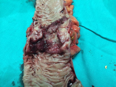 Cancer of the ascending colon