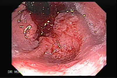 Endoscopy of Barrett Adenocarcinoma