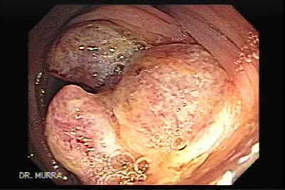 Adenocarcinoma of the Cecum