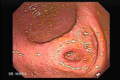 Virtual colonoscopy The Cecum, the hole of the apendix is observed.