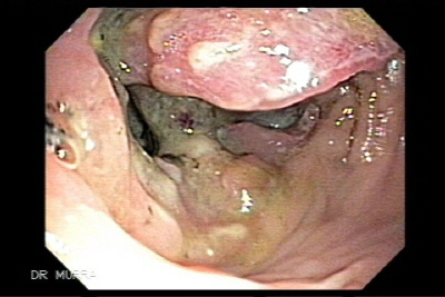 Colonoscopy Ascending Colon Adenocarcinoma