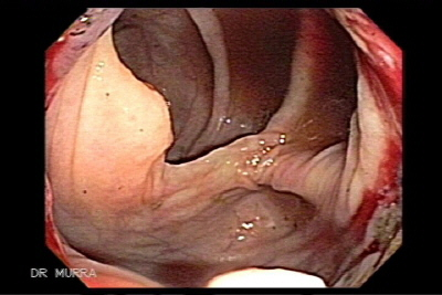 Colonoscopy of Ascending Colon Adenocarcinoma