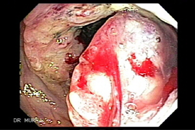 Colonoscopy of Ascending Colon Cancer