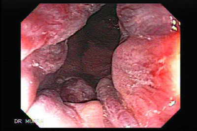 Endoscopy of rectal adenocarcinoma and internal