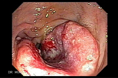 Synchronous Triple Carcinoma of the colon and rectum and Multiple Synchronous Polyps