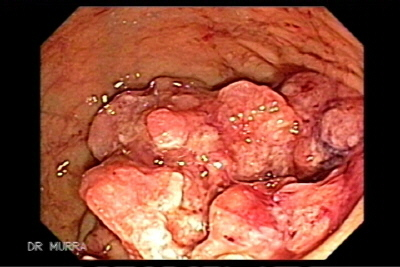Colonoscopy of a Rectal Adenocarcinoma