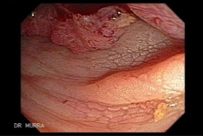 Cancer colon sigmoid chicken skin image