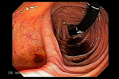 Adenocarcinoma of the terminal ileum
