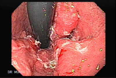 Endoscopic image of Barrett Adenocarcinoma