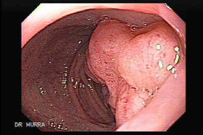Gastric lymphoma with metastases to the duodenum