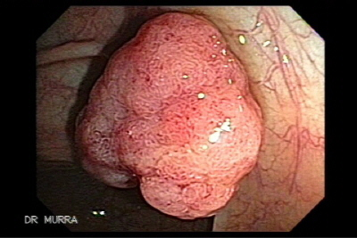 Colonic Polyp