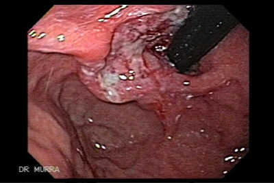 Gastric Adenocarcinoma of the fundus
