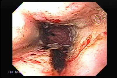 Hemorrhagic Esophagitis