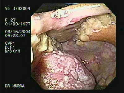 Oropharynge-Esophagic Candidiasis. Candidiasis. White plaques are present on the buccal mucosa and the undersurface of the tongue and represent thrush. When wiped off, the plaques leave red erosive areas.
