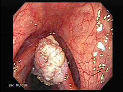 Squamous cell carcinoma of the larynx.    Laryngeal cancer is the most common cancer of the upper aerodigestive tract. The incidence of laryngeal tumors is closely correlated with smoking, as head and neck tumors occur 6 times more often among cigarette smokers than among nonsmokers. The age-standardized risk of mortality from laryngeal cancer appears to have a linear relationship with increasing cigarette consumption. Death from laryngeal cancer is 20 times more likely for the heaviest smokers than for nonsmokers.
