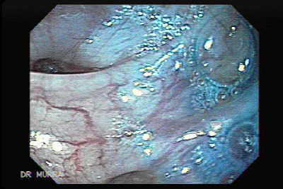 Colovesical fistula secondary to sigmoid diverticulitis