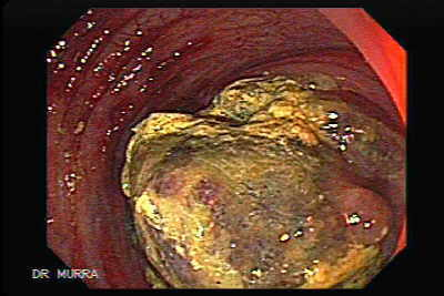 Colonoscopic view of Colonic lymphoma