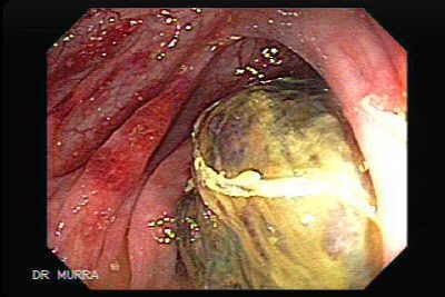 Colon lymphoma