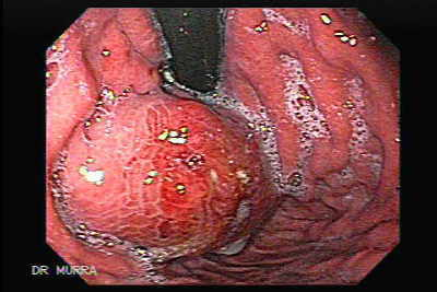 Status post injection of histoacryl mixture.  Under normal circumstances blood from the fundus is drained by the short and posterior gastric veins into the splenic vein. In portal hypertension the direction of flow is reversed and blood drains from the spleen toward the stomach into FV. The majority of FVs drain into the inferior phrenic vein, which then joins with either the left renal vein to form the gastrorenal shunt (GRS) (80%-85%) or with the inferior vena cava just below the diaphragm to form the gastrocaval shunt (10%-15%).