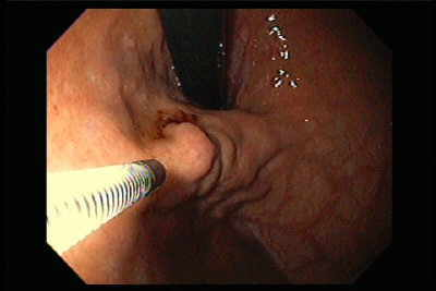Endoscopy of Gastric Varices