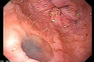 Esophageal diverticulum