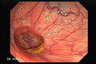 Endoscopic Image of Diverticulum