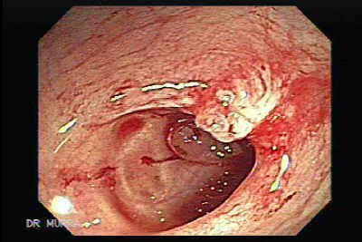 Colonoscopy of Polyp inside of a diverticula