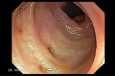 Colonoscopy of diverticulosis of the terminal ileum