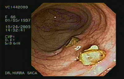 Diverticula with Fecalith.