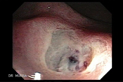 Idiopatic  rectal ulcer