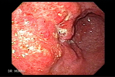 Synchronous Gastric Cancer