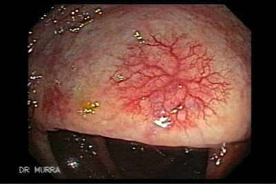Colon Angiodysplasia