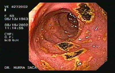 Multiple Duodenal Ulcers.