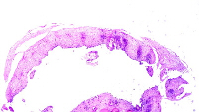 Ectopic Sebaceous Glands in the Esophagus