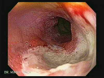 Endoscopy of Severe Reflux Esophagitis.