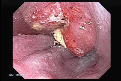 Esophageal Squamous Cell Carcinoma.