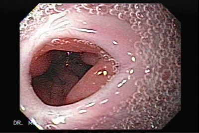 Endoscopy of Esophageal Stenosis after total gastrectomy and chemoradiation.