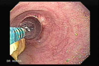 Endoscopic balloon dilation Chemotherapy- and radiation
