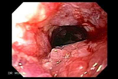 Endoscopy of Esophageal Squamous Cell Carcinoma.