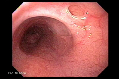 Esophageal Pseudo-Diverticulum with Submucous fistula
