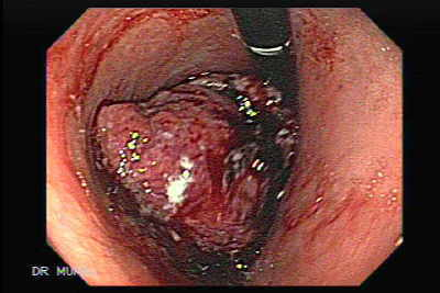 Gastric Adenocarcinoma of large size