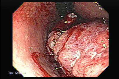 Endoscopy of Gastric Adenocarcinoma of large size